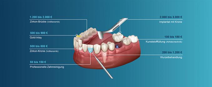 Kosten des Zahnersatzes